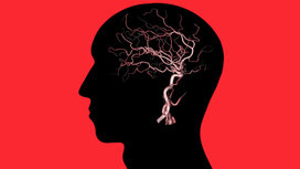 Diabetes_cognition_brain